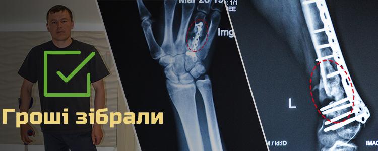 Сергій М., 31 рік. Лікування триває