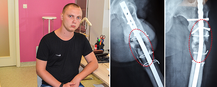 Ihor, 24 year old. The treatment is in progress