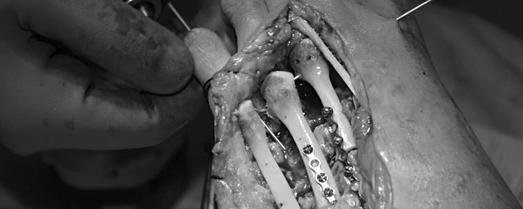 Хвилинка ортопедії: медичні таємниці простими словами