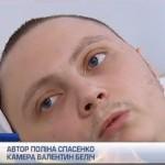 Українська кліника рятує ветеранів АТО від ампутацій