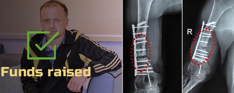 Vasyl, 42. Treatment is in progress