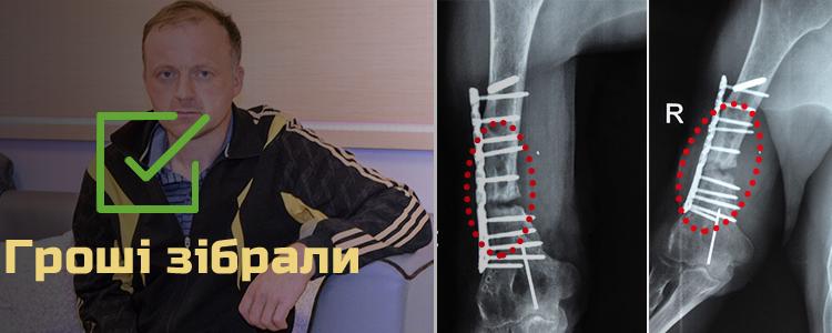 Василь М., 42 роки. Лікування триває