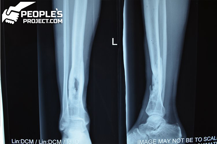 One step closer to a recovery, and minus one hole in a bone | People's project