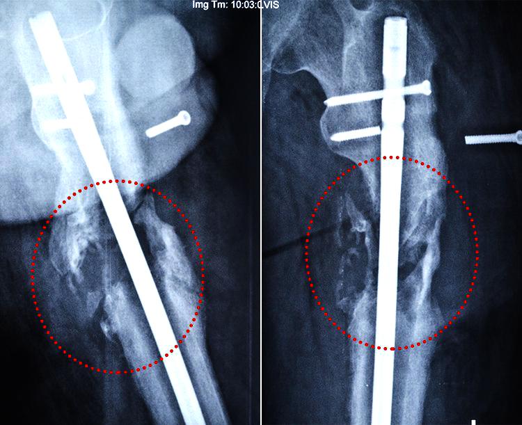 Біотех-реабілітація поранених - За три роки лікування бійця 30-ї бригади поставили на ноги, фото-2