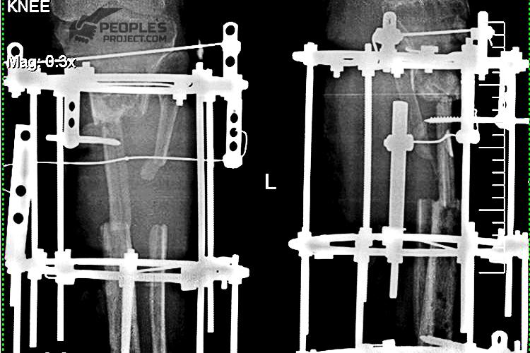 X-Ray-Volodymyr-Str