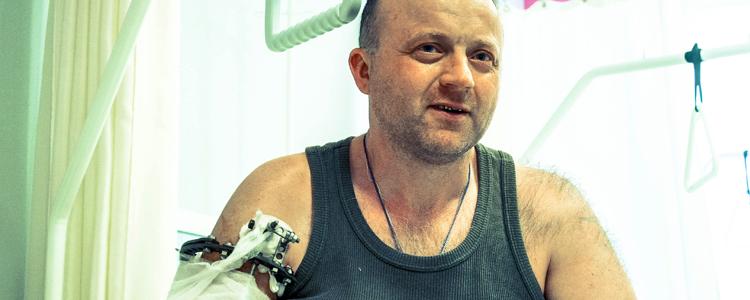 «Біотех» рятує руку бійця, який два роки марно промордувався в державних шпиталях