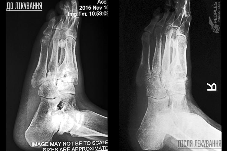 Два роки після «Біотеху»: як народні пожертви врятували ногу пораненого бійця | People's project