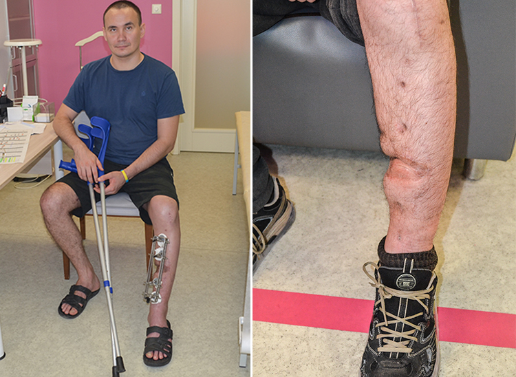The Biotech's patient who nearly lost his leg, went home on his own two | People's project
