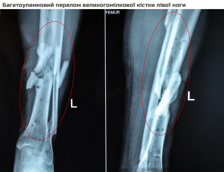 Sergiy Kod-X-ray