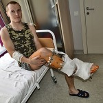 Медики спасают раздробленную ногу раненному в АТО бойцу 81 ОАЕМБр - необходима финансовая помощь. ФОТО