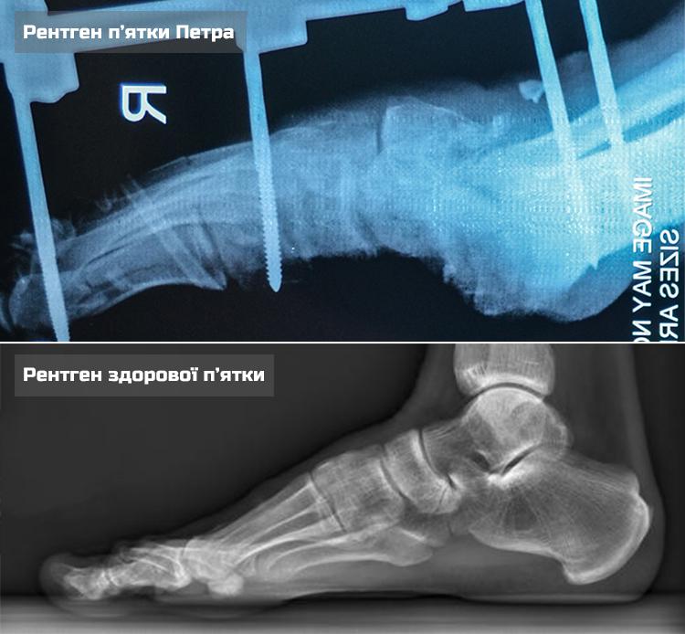 Petro O-X-ray comperison