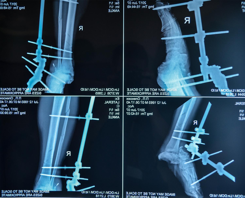 Petro O-X-ray