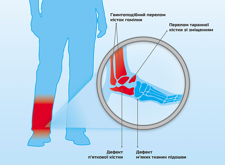 Petro Ol-injury scheme