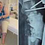 Замість ампутації бійцю 30 ОМБр виростили стегнову кістку