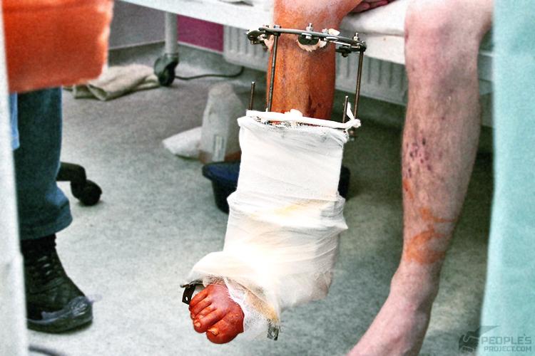 Біотех-реабілітація поранених від People's Project
