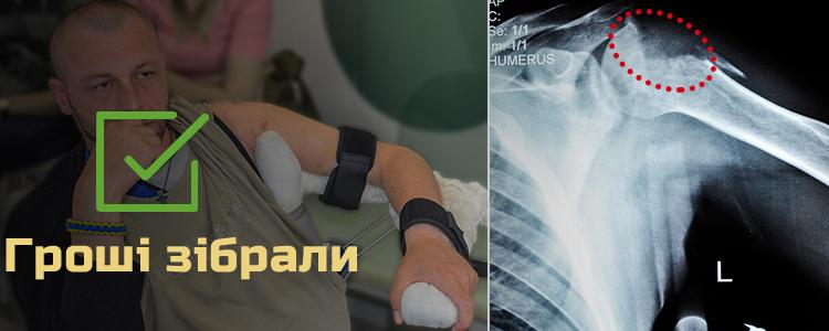 Сергій, 41 рік. Лікування триває