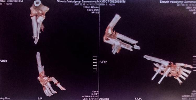 Volodymyr Sh_MRI