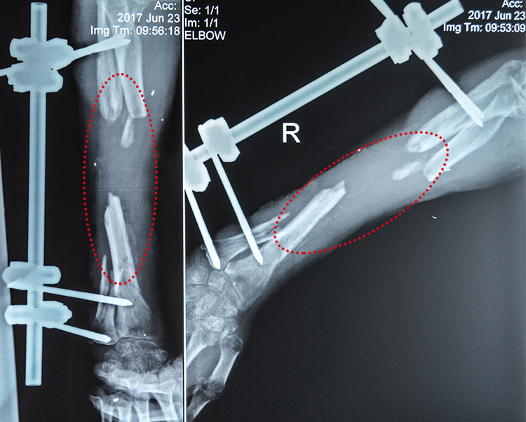 Volodymyr Sh_X-ray