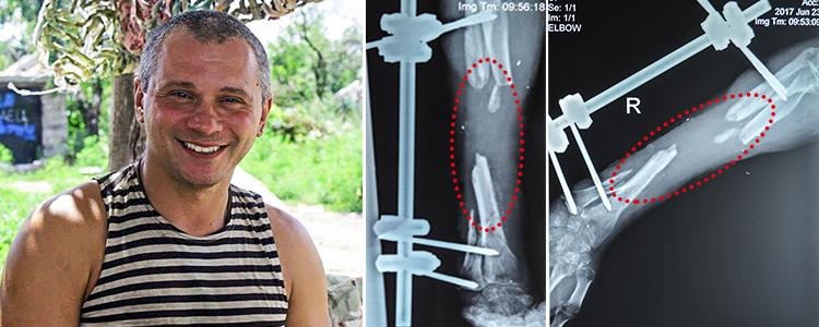 Володимир, 44 роки. Вартість лікування 672 268 грн
