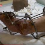 История реабилитации бойца