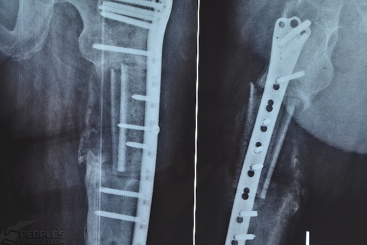 Біотех-реабілітація поранених - За три роки лікування бійця 30-ї бригади поставили на ноги, фото-3