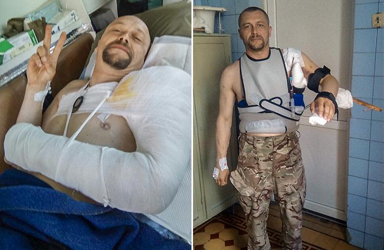«Біотех» врятував від каліцтва ще одного тяжкопораненого бійця | People's project