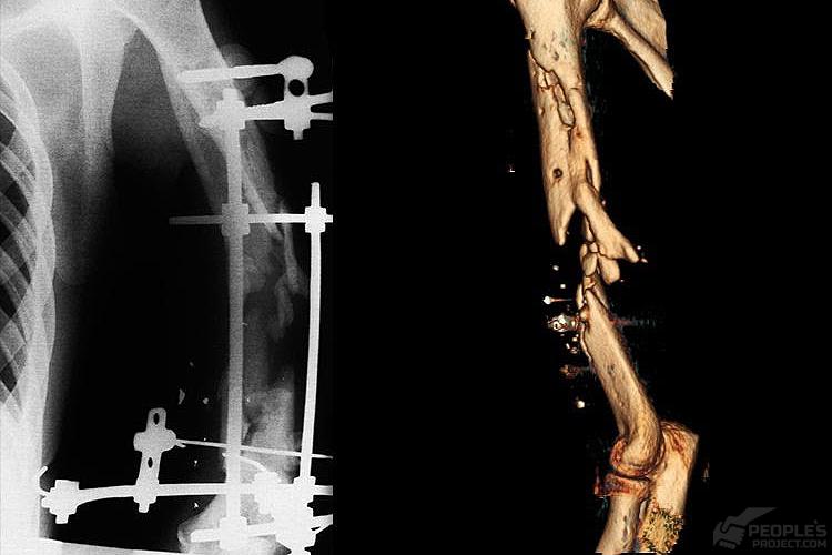 Поранений Юрій: рука на початок лікування