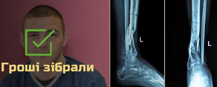 Петро К., 25 років. Гроші сплачено БФ «Допомагати просто!»