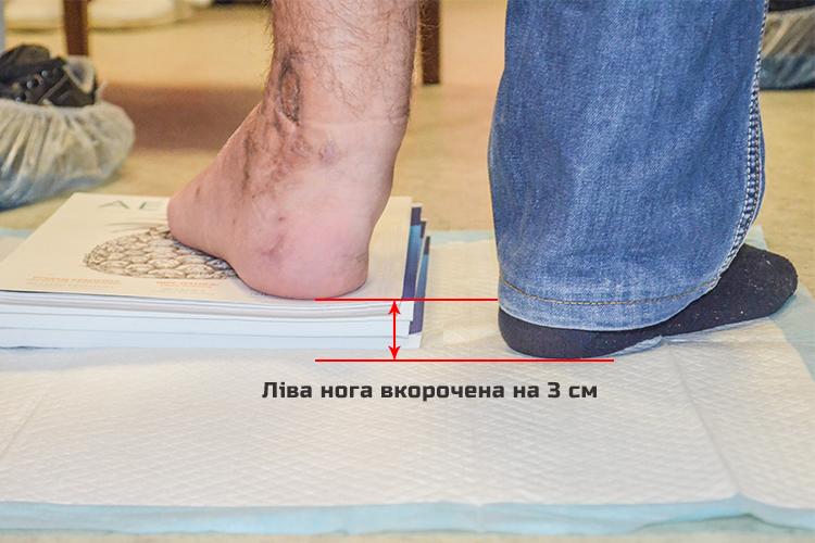 Петро К., 25 років. Гроші сплачено БФ «Допомагати просто!» | People's project