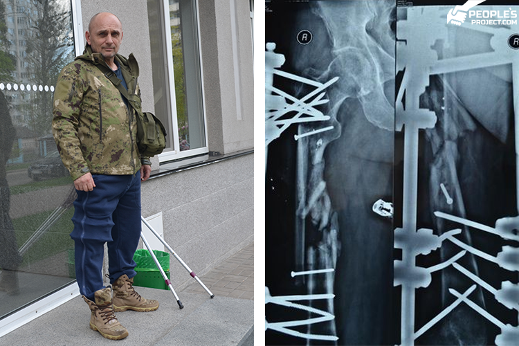 Two more months in metal. Treatment of Biotech's fighter delayed | People's project