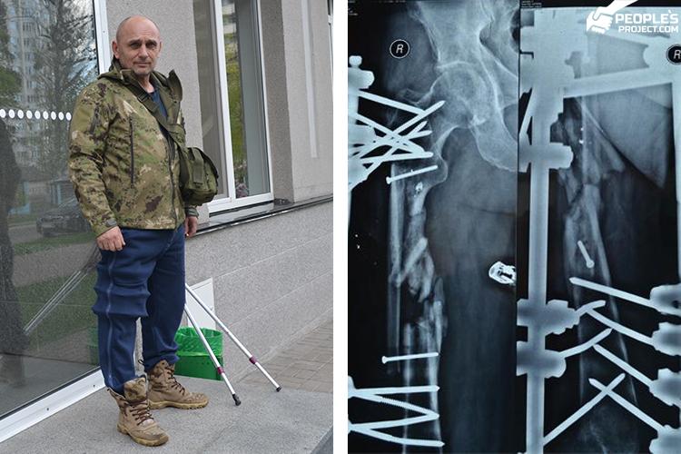 Ще два місяці в залізі. В лікуванні бійця «Біотеху» виникла затримка | People's project