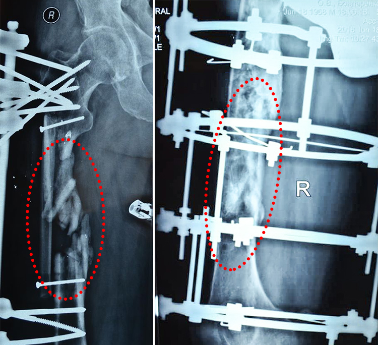 Чотири роки до першого кроку. Ветерану АТО відновили 14 см розтрощеної кістки | People's project