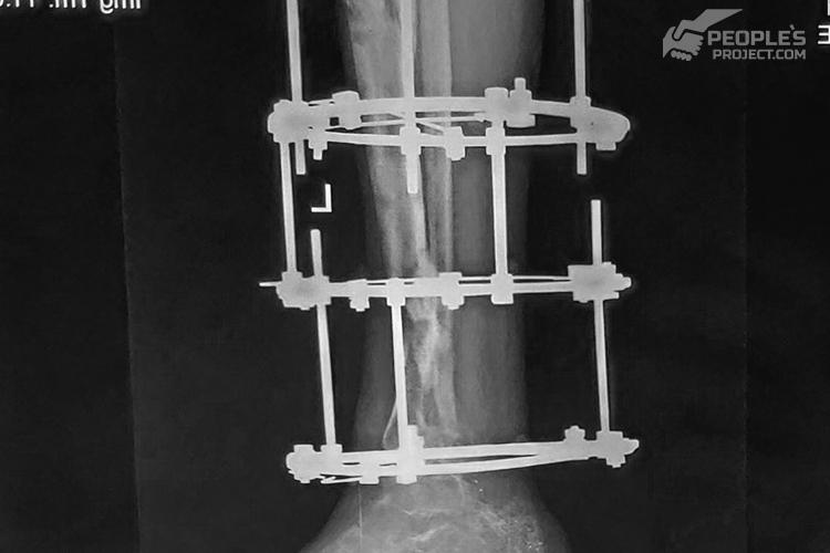 Волонтерський проект відновлює тяжко скалічену ногу молодого десантника | People's project