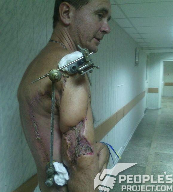 Пораненому під Донецьким аеропортом бійцю рятують скалічену руку | People's project