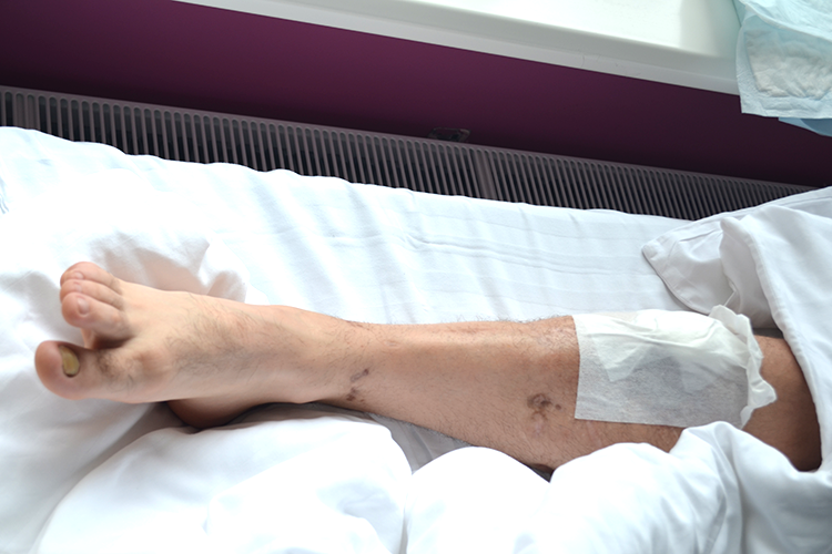 Wounded ATO veteran needs help after surgery | People's project