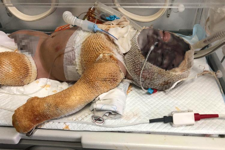 У пожежі постраждав семимісячний хлопчик. Потрібна допомога | People's project