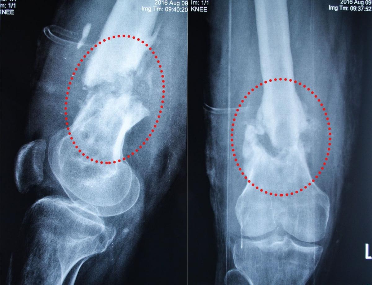 Biotech X-Ray-Vitaliy-Art